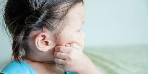 Larocheposay ArticlePage Eczema Dont scratch