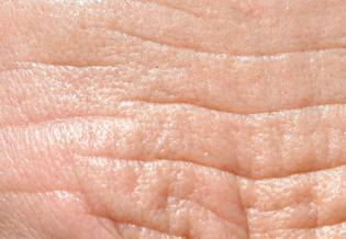 LarocheposayArticlePageSunSuninducedpigmentationaging